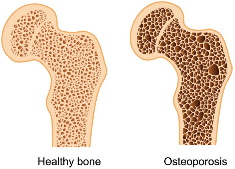 Dibujo de dos huesos cortados por la mitad uno normal y uno con osteoporosis. El enfermo tiene menos calcio