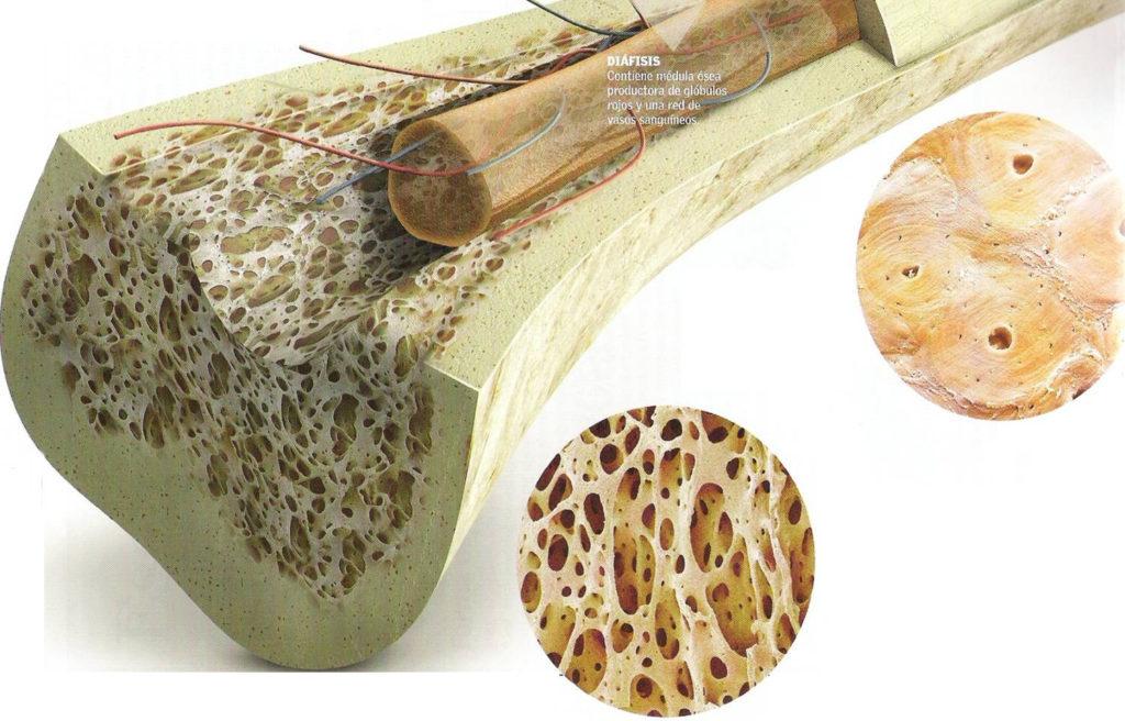 Gráfico de las travéculas del hueso y su tejido esponjoso